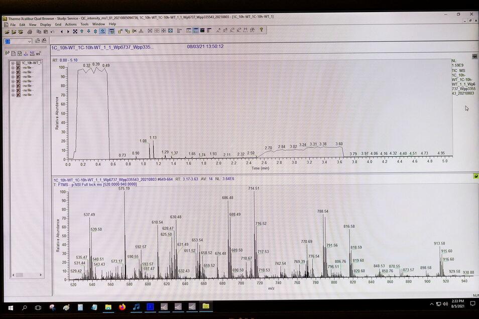 Da questo spettro lipidico, dovrebbe essere derivata un'analisi della salute sotto forma di segnale stradale per il futuro cliente.